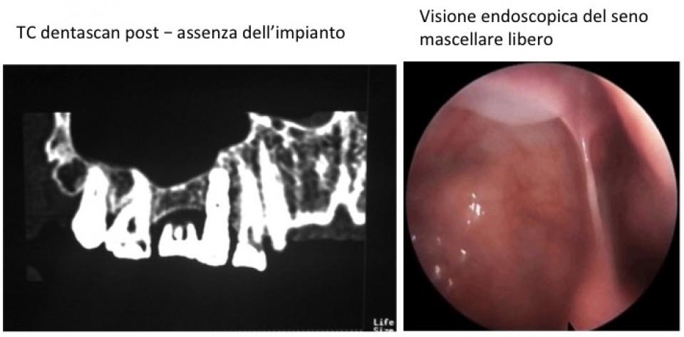 Controllo post rimozione impianto seno mascellare dx